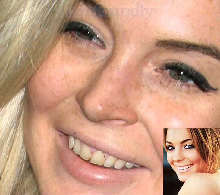 Celebrities Who Have Had Some Serious Dental Surgery